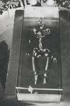 Thomas's bones