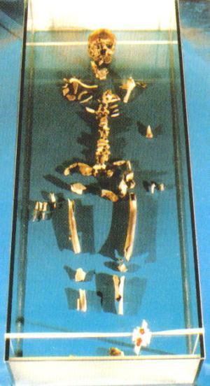 St. Thomas's Skeleton